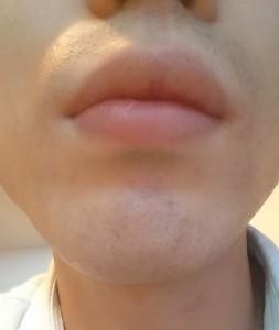 髭脱毛症例