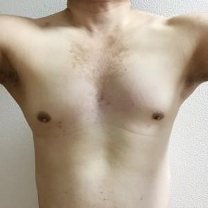 胸毛脱毛症例